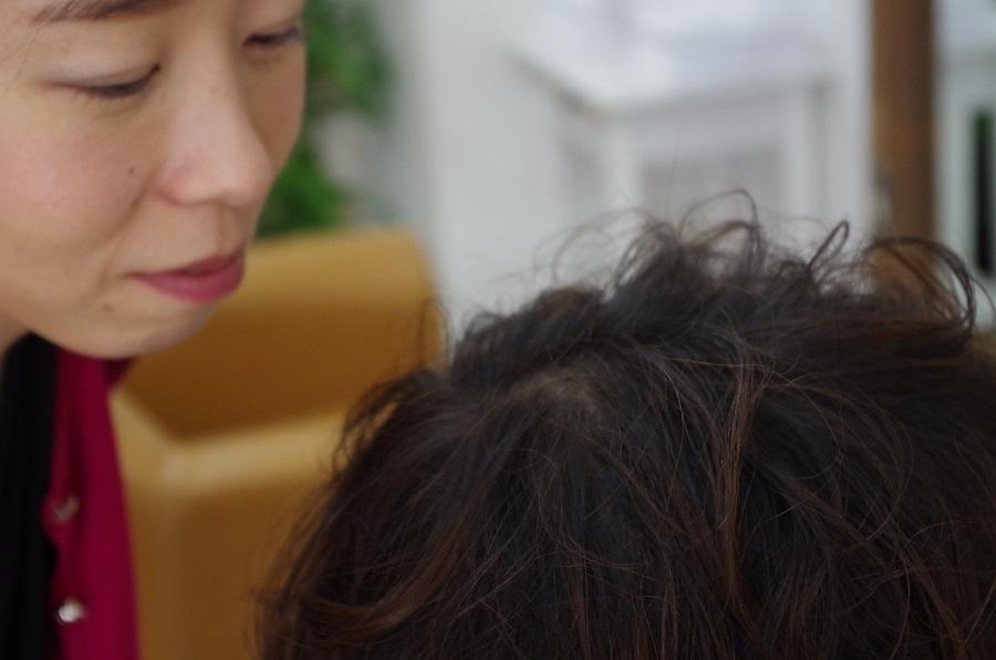 頭皮のにおい・あぶら・かゆみ~男性編~